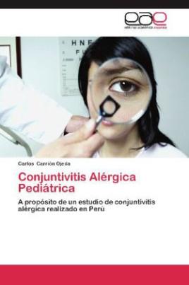 Conjuntivitis Alérgica Pediátrica