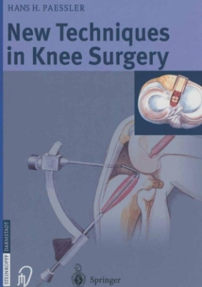 New Techniques in Knee Surgery