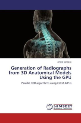 Generation of Radiographs from 3D Anatomical Models Using the GPU