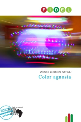 Color agnosia