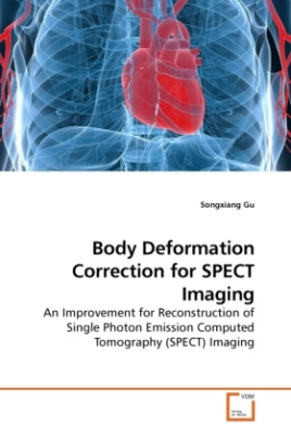 Body Deformation Correction for SPECT Imaging